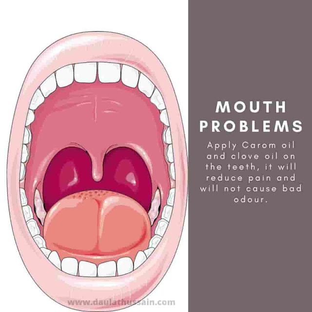 Mouth problems